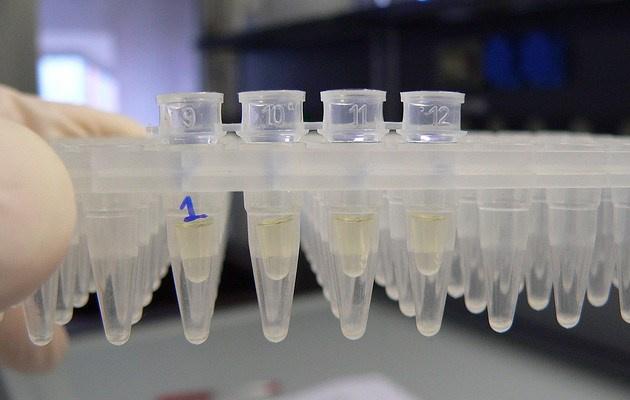 Νέα δεδομένα σχετικά με τη μετάδοση υπερ-μικροβίου μεταξύ ειδών